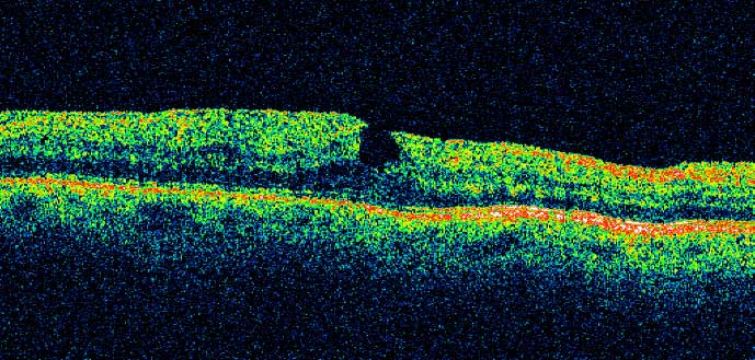 Epiretinal Membranes Can Lead To Secondary Macular Edema